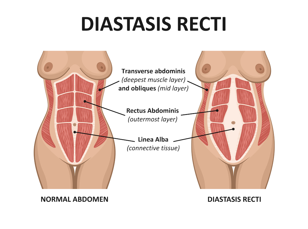 Diastasis Recti illustration