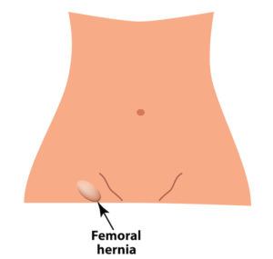 Vector illustration on isolated background of femoral hernia